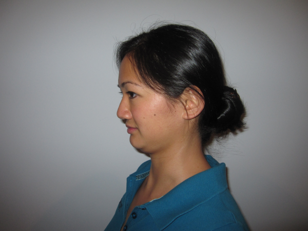 Physical Therapy Exercise - Chin Tuck End