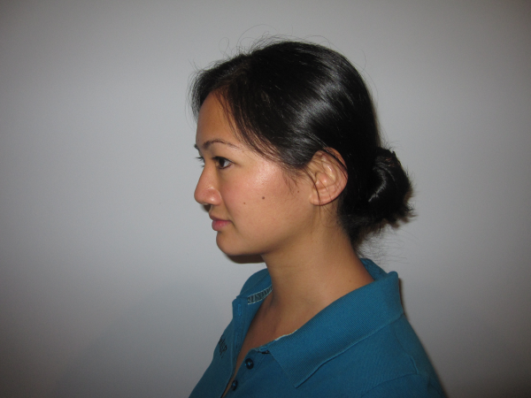 Physical Therapy Exercise - Chin Tuck start