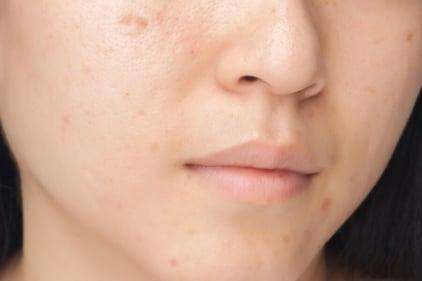 Acne Scar Skin