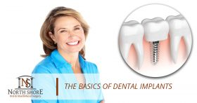 The Basics of Dental Implants