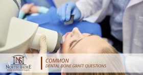 Common Dental Bone Graft Questions