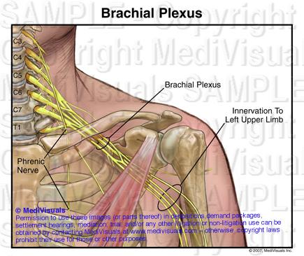 Understanding the Brachial Plexus Injury: Part 1