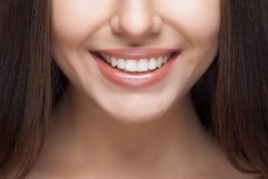 carillas-dentales-odontologia-ikigai-las-palmas