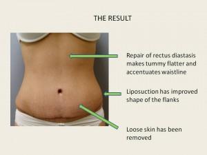 Liposuction Muscle Repair