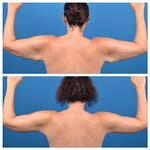 Arm Lift Procedures Considerations Expectations and Recovery_Before_After