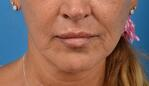 How a Lip Lift Can Counteract Aging Lips_After Photo