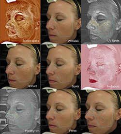 Visia Skin Candidate in Melbourne, FL