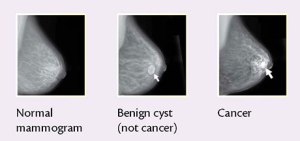 Mammography The Evolving Story Of A Cancer Diagnostic Tool