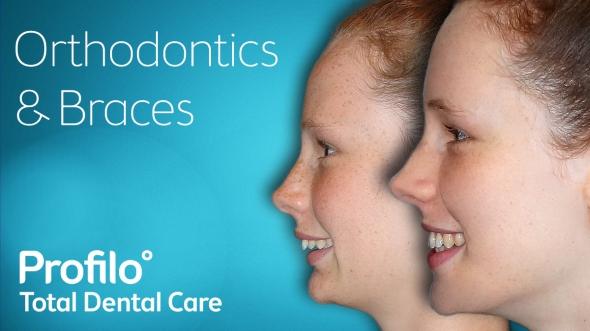 teen-braces-orthodontics2