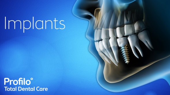 what-are-dental-implants4