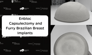 Enbloc Capsulectomy and Furry Brazilians or Polyurethane Breast Implants