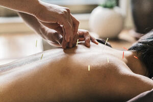 Can Acupuncture Provide a Solution to the Opioid Epidemic?