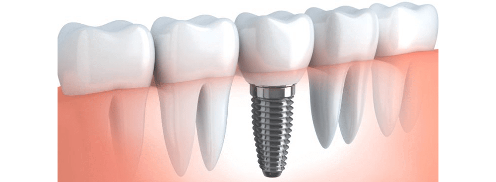 dental-implant-1