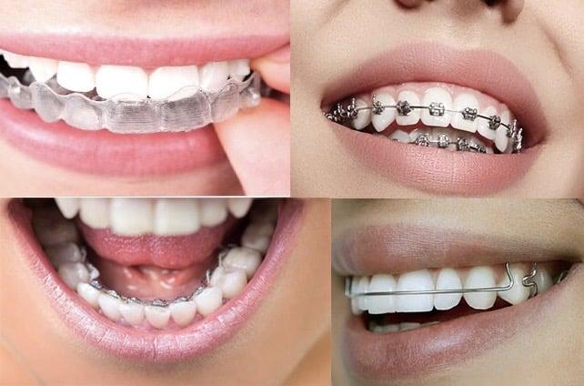 Les différentes méthodes d'orthodontie