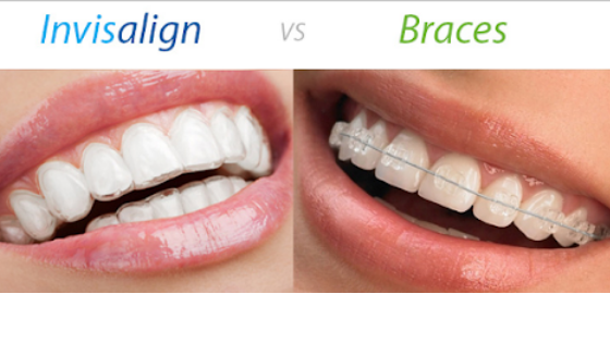Invisalign vs Bagues