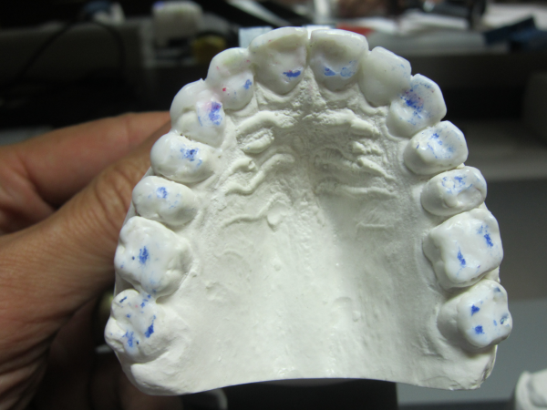 Why Understanding Occlusion is Essential to Quality Dental Care