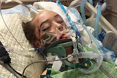 Amberlee-Nicole-Rasp-traumatic-brain-injury-recovery-assuaged-in-coma