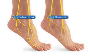 http://cdn2.hubspot.net/hub/67234/file-2010815070-jpg/images/diabetic_neuropathy_feet.jpg?t=1432833314801&width=314