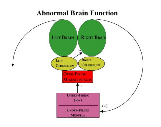 Abnormal Brain Function Schematic BBT