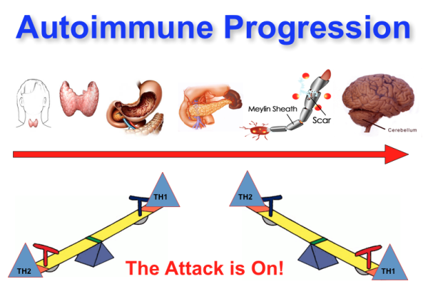 Autoimmune Progression