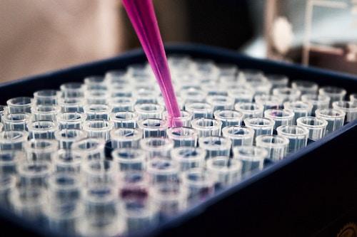Afvallen via bloedanalyse bij Nederland Slank