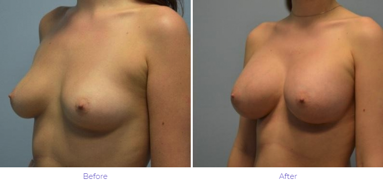 Breast Augmentation Results Nashville