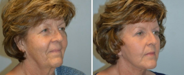 Face Procedures Nashville TN