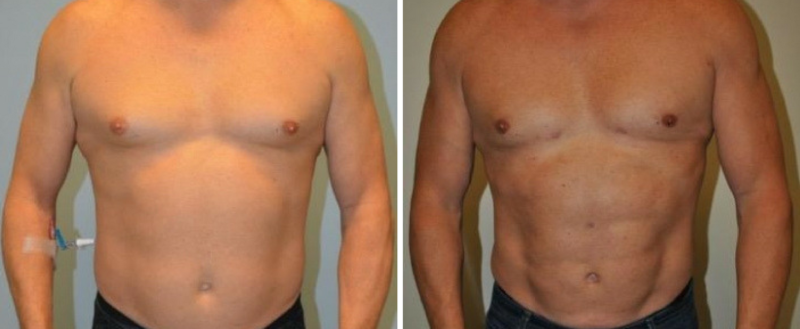 High Definition Lipo Results Nashville