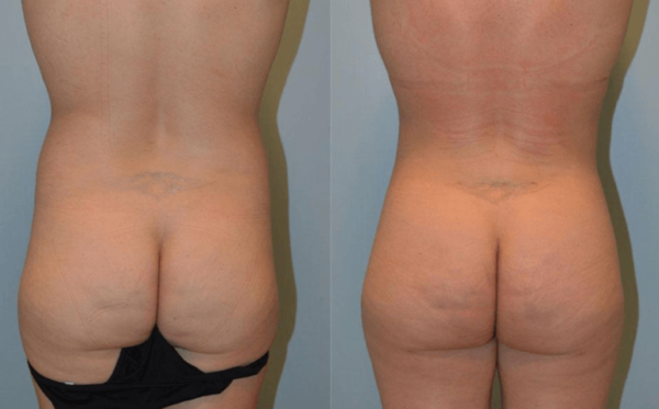 Brazilian Butt Lift Nashville