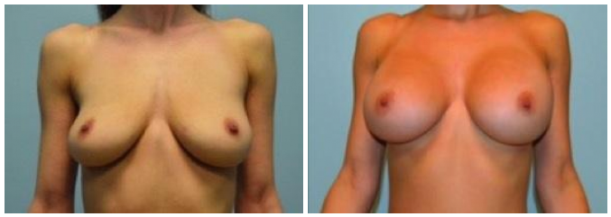 Breast Augmentation Nashville