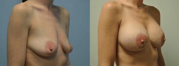 Breast Augmentation Nashville, TN