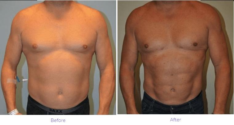 Liposuction men Nashville