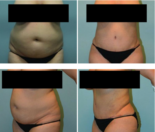 Tummy Tuck Before and After Nashville