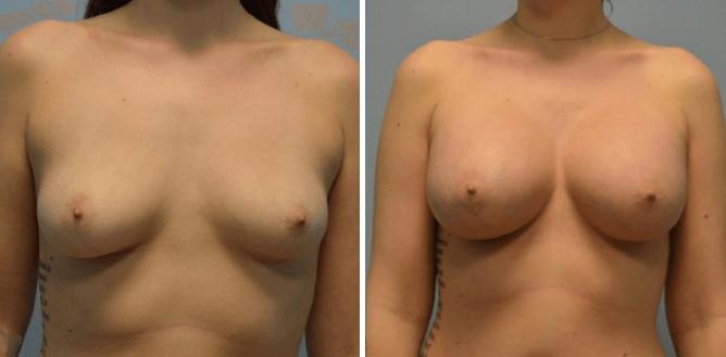 Breast Augmentation Nashville