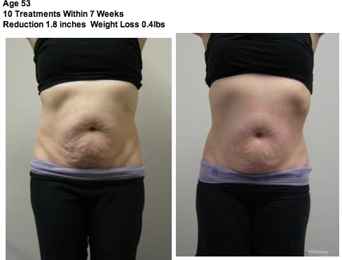 Ultrasonic Body Contouring Before After Skinhealth Boston
