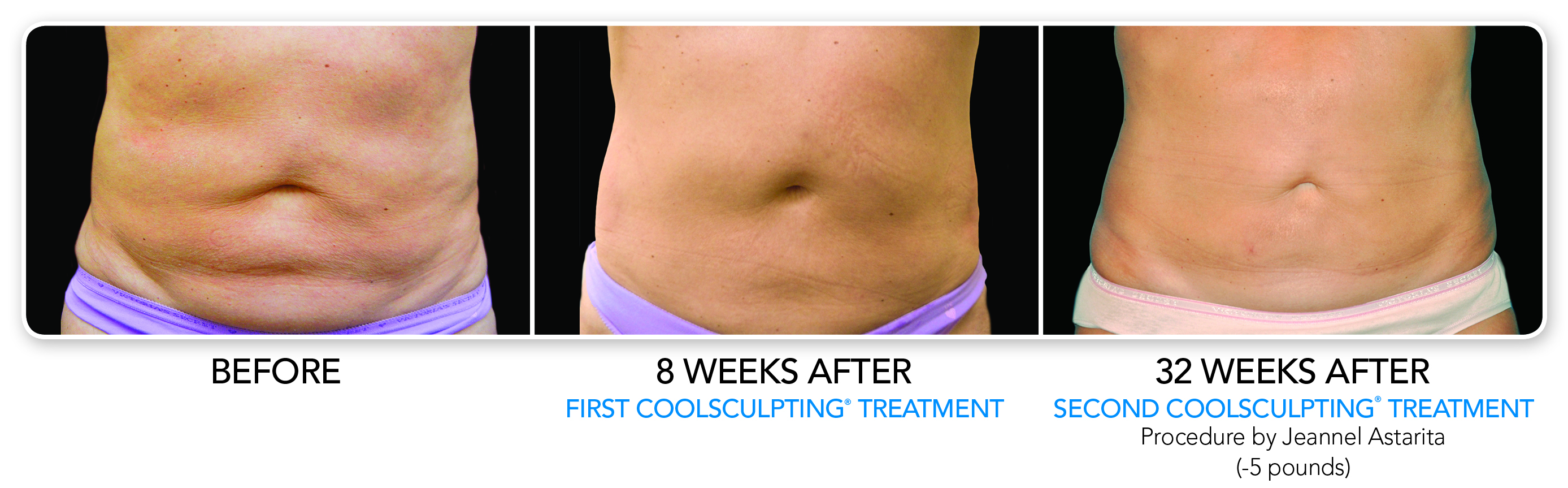 Coolsculpting before/after