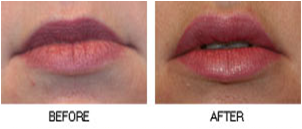 Lips Before After3