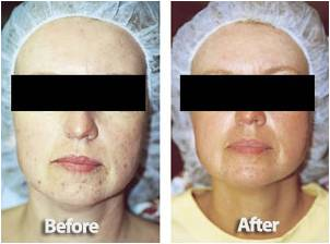 Microdermabrasion: Before and