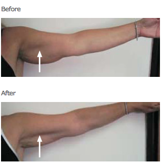 cellulite reduction | arms
