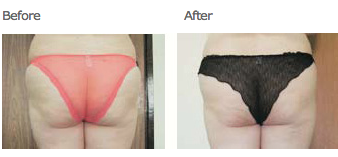 cellulite reduction | buttocks