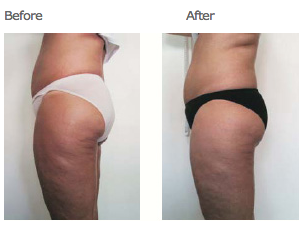 cellulite reduction | hips & thighs