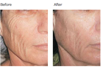 Skin Tightening before after