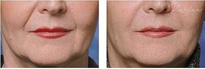 Restylane before, after