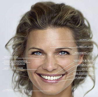 Facial Filler Indications MA