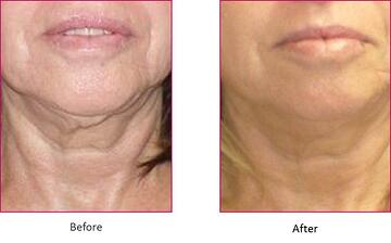 neck tightening before-after