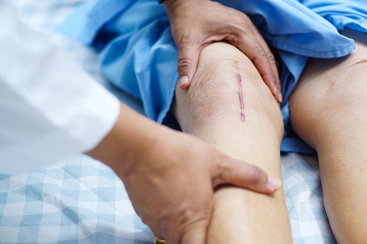 Do I Really Need a Joint Replacement?