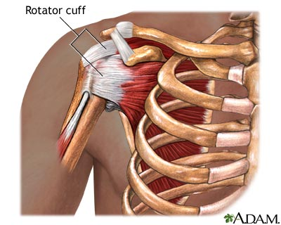 Rotator Cuff Injury and Regenerative Therapy