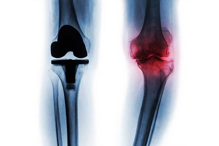 5 Things to Know Before Getting a Total Knee Replacement