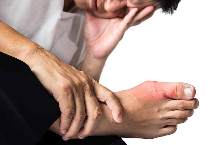 Gout - What It Is and How It Affects Your Joints