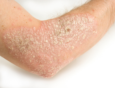 plaque psoriasis on skin
